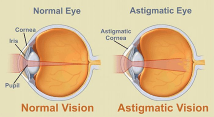 All About Astigmatism | Zenni Optical